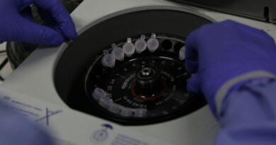 Jardim Alegre confirma mais dois novos casos de coronavírus, nesta segunda (16)